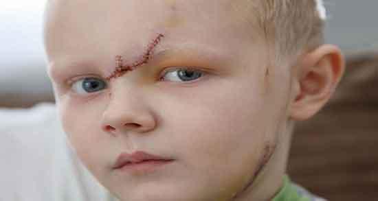 تعبیر خواب صورت زخمی ، زخم صورت دیگران و مرده و فرزند و زخم چرکی و دوختن زخم