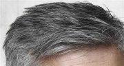 تعبیر خواب موی سر مرده ، ترشیدن و ریختن و سفید شدن موی سر مرده