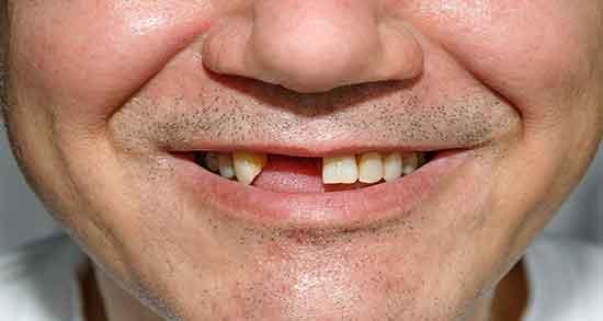 تعبیر خواب افتادن دندان جلو بالا بدون خونریزی ، و شکستن دندان جلویی