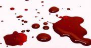 تعبیر خواب خون قربانی ، و آیا دیدن خون در خواب خواب را باطل میکند و خون از دهان
