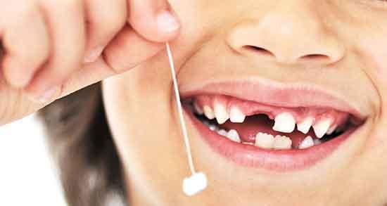 تعبیر خواب دندان افتاده ، و کشیدن دندان در اسلام در خواب و روانشناسی دندان