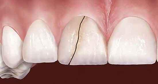 تعبیر خواب دندان شکستن ، معنی دندان شکستن و افتادن در خواب چیست