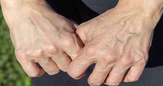 تعبیر خواب پیر شدن دست ، معنی چروک شدن پوست دست در خواب چیست