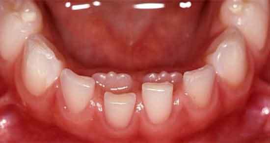 تعبیر خواب افتادن دندان و رویش دندان جدید ؛ معنی افتادن و درآمدن دندان چیست