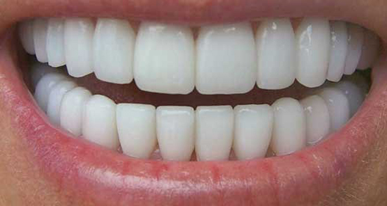 تعبیر خواب افتادن دندان پوسیده ، معنی دیدن افتادن دندان پوسیده در خواب ما چیست