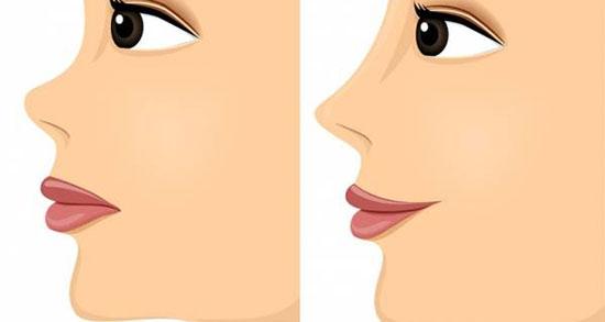 تعبیر خواب خون آمدن از بینی ، معنی خون آمدن از بینی در خواب های ما چیست