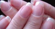 تعبیر خواب ناخن شکسته شده دست ، معنی ناخن شکسته شده دست در خواب