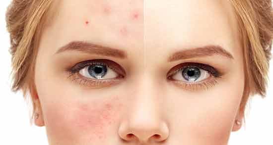 اسفرزه برای جوش ؛ خواص اسفرزه برای درمان جوش های صورت