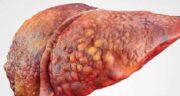 فواید سماق برای کبد چرب ؛ تاثیر استفاده از سماق برای درمان کبد چرب