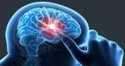 آبسه مغزی ؛ درمان آبسه مغزی با طب سنتی و عوارض عمل جراحی در کوردکان