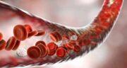 التهاب خون ؛ مکانیسم و درمان التهاب چیست و چه کسانی عفونت خون میگیرند