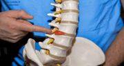 التهاب دیسک کمر ؛ بهترین روش درمان و قرص ضد التهاب دیسک کمر