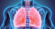 التهاب ریه ؛ خطرناک است و درمان التهاب ریه وایتکس در کرونا