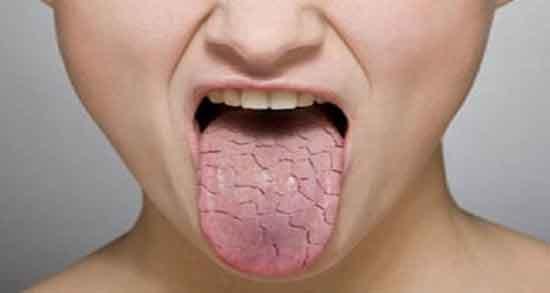 خشکی دهان ؛ کرونا در صبح در خواب طب سنتی و دیابت و درمان دکتر خیراندیش