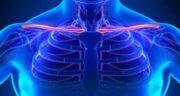 درد استخوان ترقوه ؛ درمان خانگی و ورزش برای درد و برجستگی استخوان ترقوه
