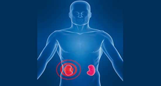 درد کلیه ؛ چگونه درد کلیه را کاهش دهیم در اثر سرما و واریکوسل و قبل از پریود