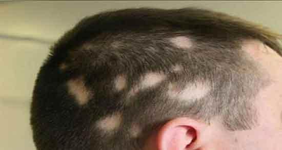 ریزش مو سکه ای ؛ درمان خانگی و بهترین دکتر برای درمان ریزش مو سکه ای