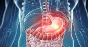 سرطان دستگاه گوارش ؛ سرطان شکمی و از کجا بفهمیم سرطان معده داریم