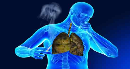 سرطان شش ؛ مهمترین علائم سرطان ریه در مراحل اولیه در جوانان و علائم مرگ در سرطان ریه