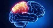سرطان مغز ؛ علت و طول عمر بیماران سرطان مغز و استخوان و شایع ترین علائم