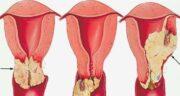 سرطان واژن ؛ عکس کیست دهانه واژن و آیا سرطان واژن کشنده است
