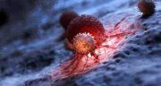 سرطان ؛ عکس از انواع سرطان و علائم سرطان چیست و از چی پیدا میشود