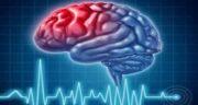 سکته مغزی ؛ انواع سکته مغزی خفیف خطرناک است و علائم سکته مغزی در سالمندان
