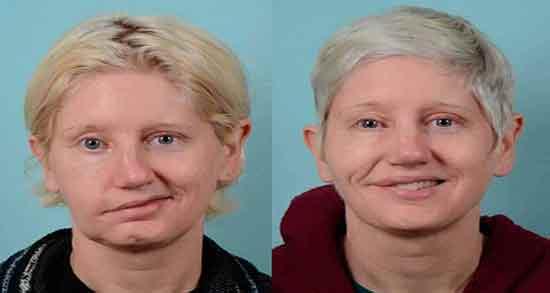 فلج بلز ؛ واکسن کرونا و تمرین و متخصص درمان و ماساژ صورت برای درمان فلج بلز