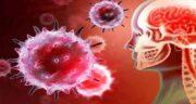 مننژیت ؛ راههای تشخیص و عکس های بیماری مننژیت و آیا بیماری مننژیت درمان دارد