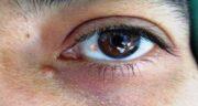 ناخنک ؛ درمان خانگی ناخنک چشم با دارو و عمل ناخنک چشم چقدر طول میکشد