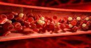 چربی خون ؛ علائم و درمان خانگی چربی خون بالا در زنان و مردان و آبلیمو