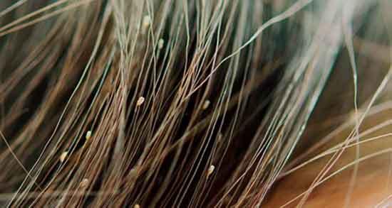 خواص سرکه سفید برای شپش ؛ درمان خانگی و فوری شپش با سرکه سفید