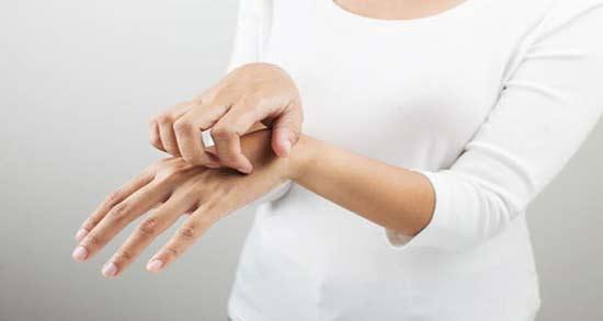 درمان گال با سرکه سفید ؛ خاصیت درمانی سرکه سفید برای بیماری گال