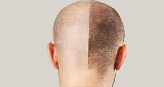برگ سنا برای رشد مو ؛ تاثیر استفاده از برگ سنا برای افزایش رشد مو