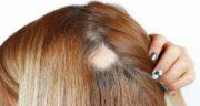 خواص ثعلب برای مو ؛ تقویت فولیکول ها و درمان ریزش مو با مصرف ثعلب
