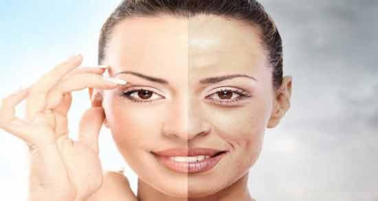 فواید برگ سنا برای پوست ؛ درمان جوش و آکنه صورت با برگ سنا