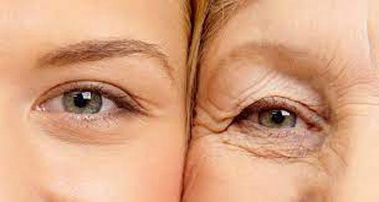 روغن آرگان برای دور چشم ؛ تاثیر مصرف روغن آرگان برای درمان چروک دور چشم