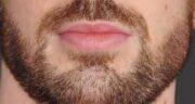 روغن خراطین برای ریش ؛ روغن خراطین به عنوان روغنی مناسب برای رشد ریش