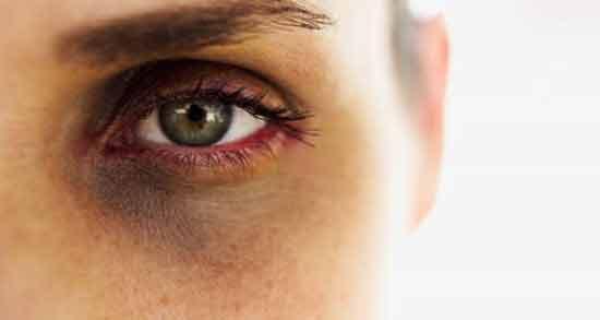 روغن کرچک برای سیاهی دور چشم ؛ درمان تیرگی دور چشم با روغن کرچک