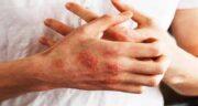 سکنجبین برای درمان اگزما ؛ درمان خانگی اگزما پوستی با سکنجبین