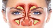 فواید روغن سیاه دانه برای سینوزیت ؛ استفاده از روغن سیاه دانه و درمان سینوزیت