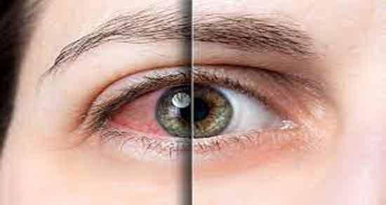 مضرات روغن کرچک برای چشم ؛ خطرات استفاده از روغن کرچک برای چشم