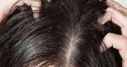هلیله سیاه برای ریزش مو ؛ خاصیت هلیله سیاه برای ریزش موی سر